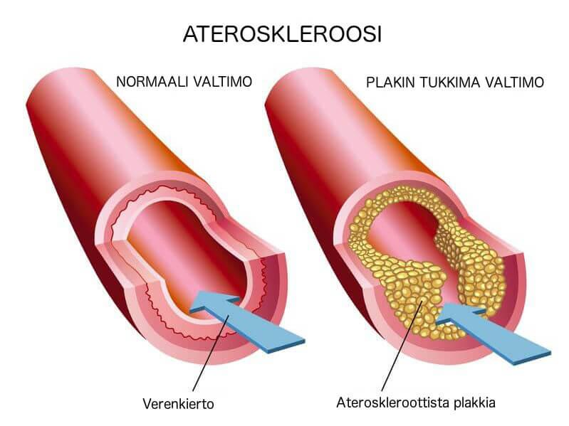 Ateroskleroosi