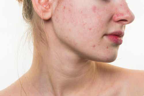 5 ruokatottumusta, jotka voivat tuhota ihosi