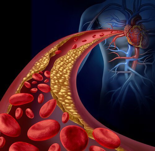 kolesterolia valtimoissa