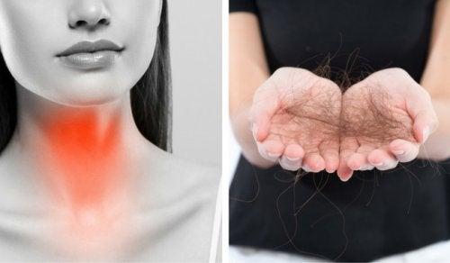 8 keinoa ehkäistä kilpirauhasen toimintahäiriöistä johtuvaa hiustenlähtöä