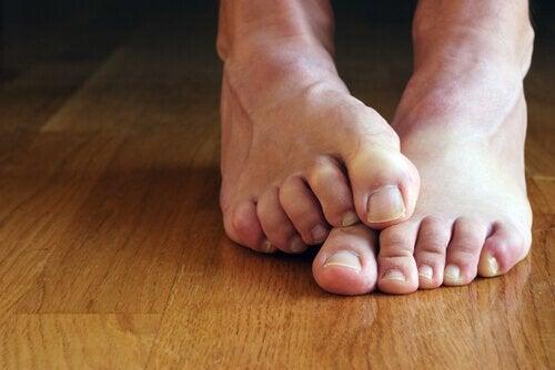 jalkojen kovettumat