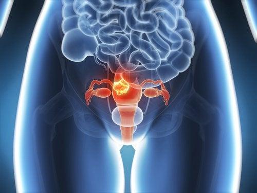 kohdun fibroidit