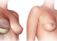 Mastektomia