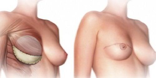 Tämä sinun tulisi tietää rinnanpoistoleikkauksesta