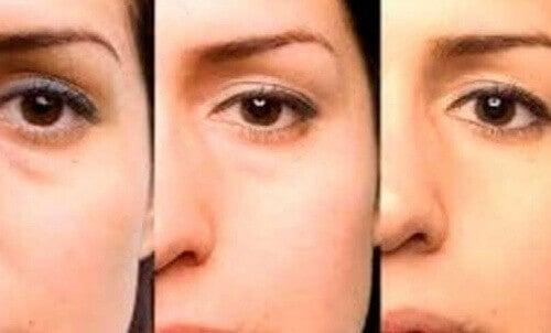 Näillä nikseillä eroon silmäpusseista
