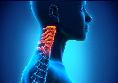 Niskanikamien rappeuma on niskanikamien niveltulehduksen muoto