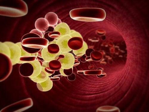inkivääriolut ja kolesteroli