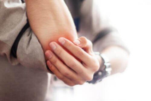 Bursiitin hoito – 5 luonnollista tapaa