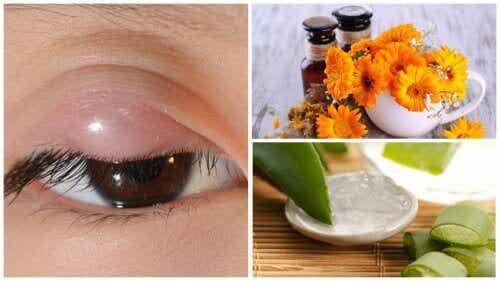 7 luontaishoitoa näärännäppyjen hoitoon