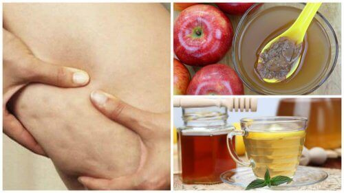Torju selluliittia hunajalla ja omenaviinietikalla