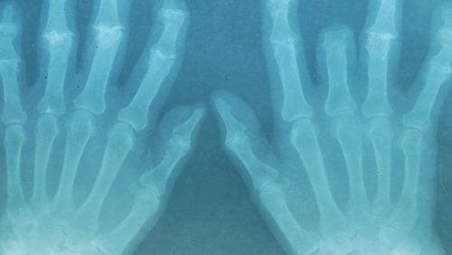 röntgenkuva käsistä