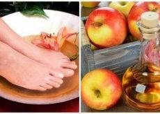 jalat omenaviinietikassa