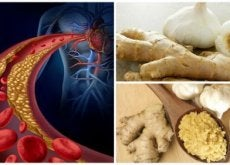 hoito korkeaan kolesteroliin