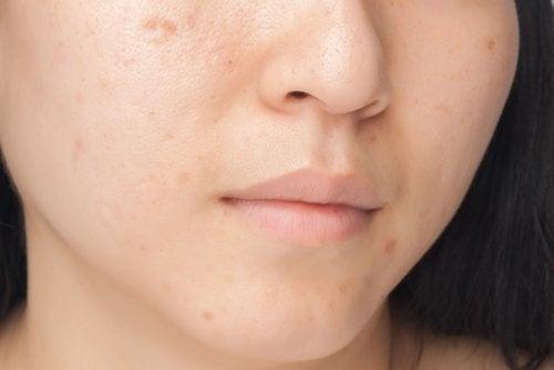 ihon näppylät
