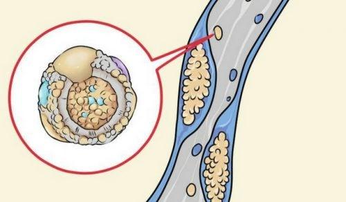 8 kolesterolia alentavaa tapaa ruoanlaitossa