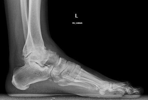 röntgenkuva jalasta
