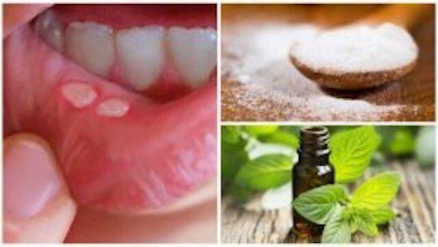 7 kotihoitoa suun rakkuloihin