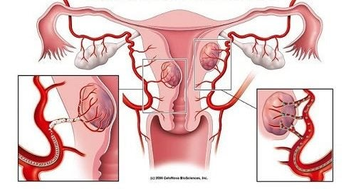 7 varoitusmerkkiä kohdun fibroideista