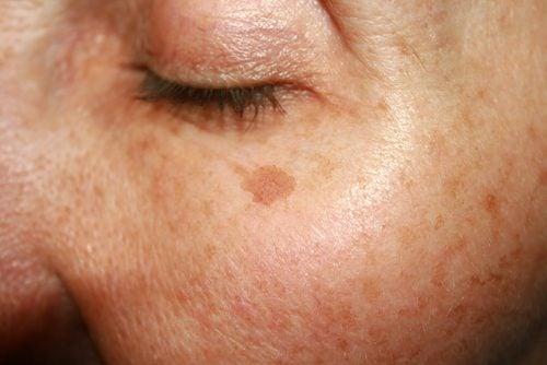 maksaläiskät kasvoissa