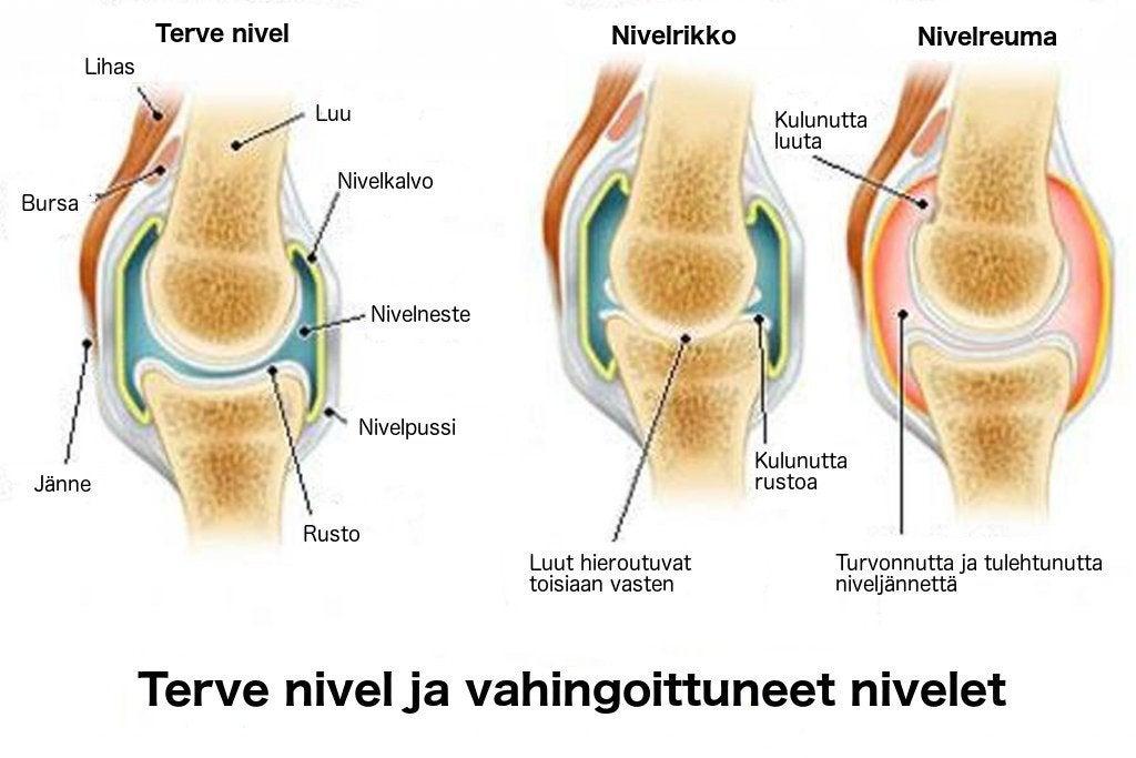 Niveltulehdus, nivelrikko ja osteoporoosi - mitkä niiden erot ovat?