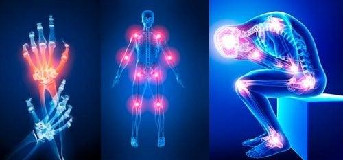7 mahdollista syytä nivelkipuun