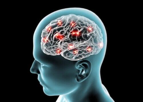 terveet aivot guavalla