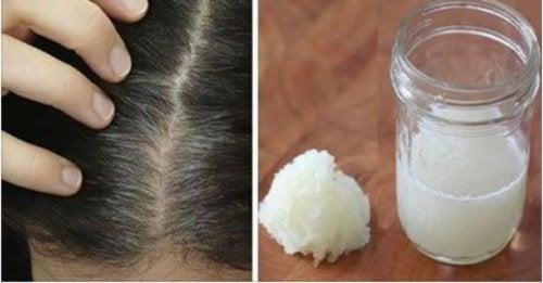 Hoito hunajasta ja sipulista hiustenlähtöön