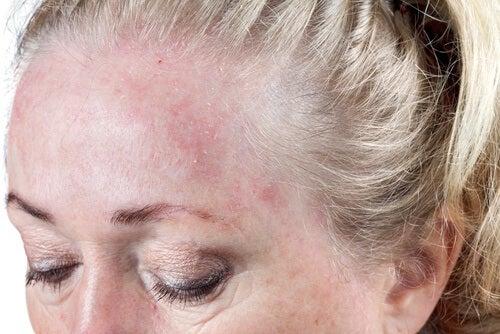 ihottuma otsalla, kun menee nukkumaan hiukset märkänä
