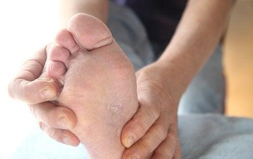 Jolkojen liottaminen etikassa auttaa torjumaan jalkasientä.