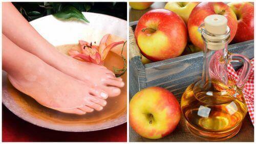 6 hyötyä jalkojen liottamisesta etikassa