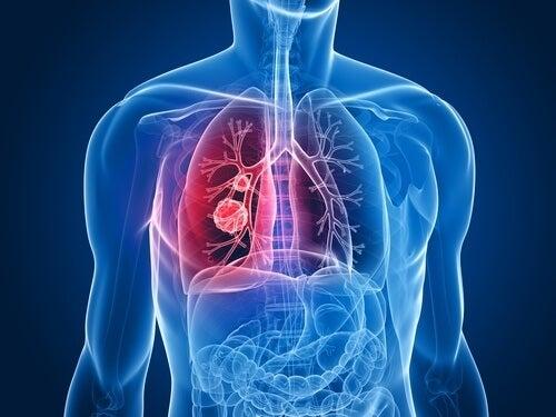 keuhkosyöpä