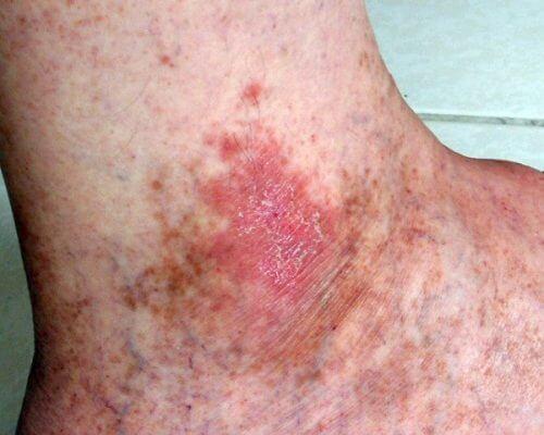 älä jätä huomioimatta tätä ihosyövän merkkiä: pahannäköinen ihottuma
