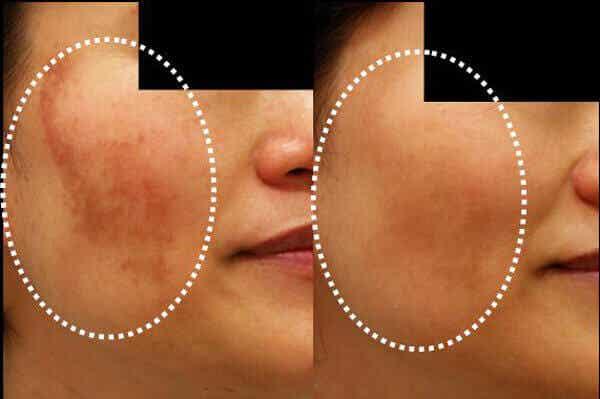 Vähennä ihon pigmenttihäiriöitä näillä kotikonsteilla
