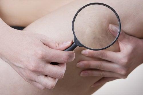 selluliitin poistaminen vesiterapialla