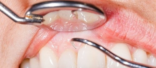 14 syytä sille, miksi ikenet vuotavat verta hampaita harjatessa