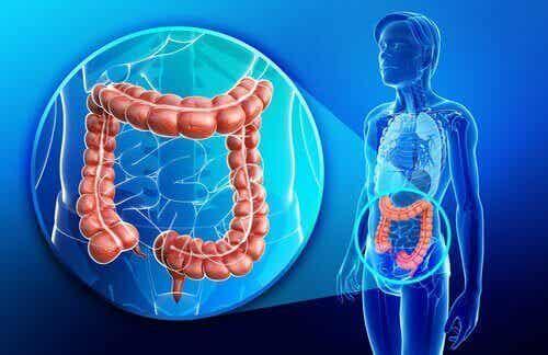 Mikä on Crohnin tauti?