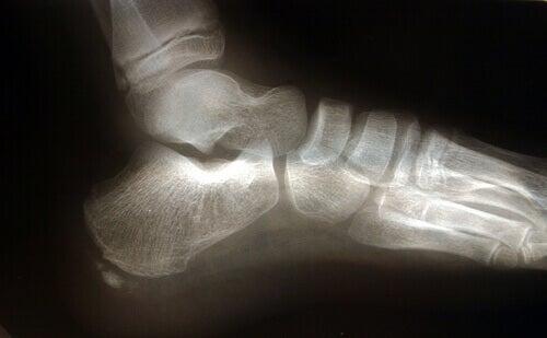 Plantaarifaskiitti saattaa vaikuttaa kävelyyn.