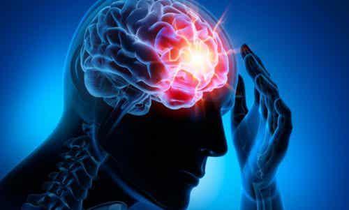 Neljä yleisintä aivoverenkierron häiriötä