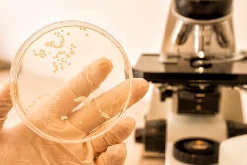 hiivasienitulehdus laboratorionäyte