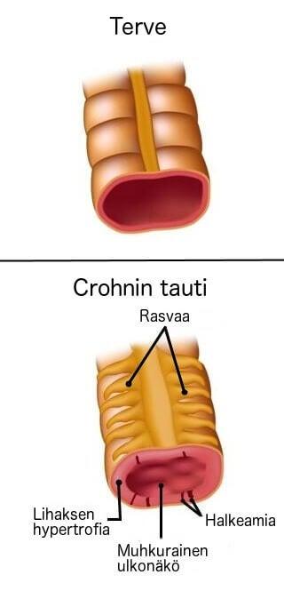 mikä on Crohnin tauti
