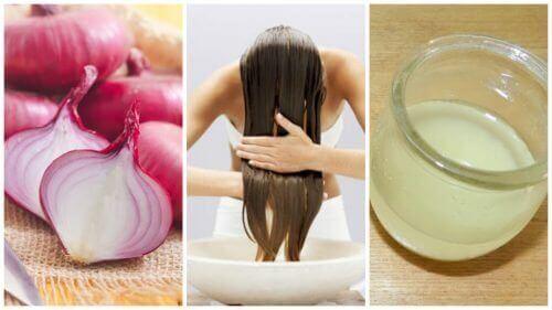Torju hiustenlähtöä sipuliin perustuvilla hoidoilla