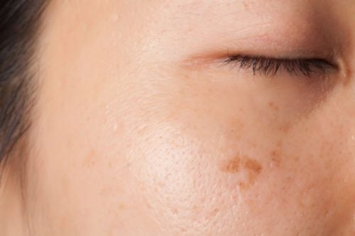 ihomuutokset voivat olla syövän oireita