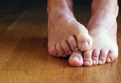 hoida jalkasieni luonnollisesti