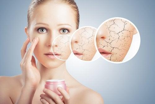 kuivan ihon kosteuttaminen