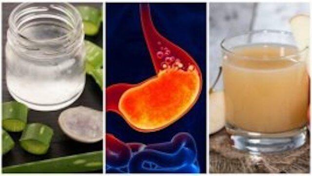 Hoida närästys pois: 5 luonnollista hoitoa