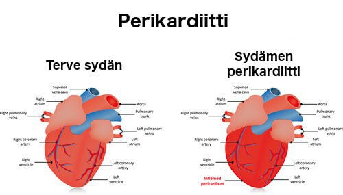 sydämen perikardiitti