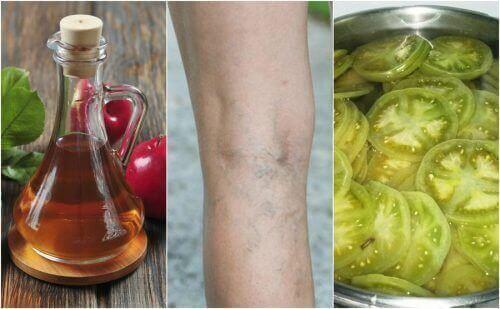 Torju suonikohjuja omenaviinietikalla ja vihreällä tomaatilla