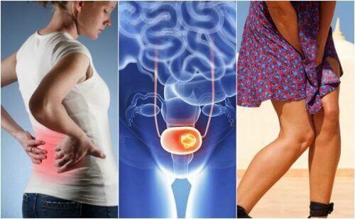 7 virtsarakon syövän merkkiä, joita tulisi pitää silmällä