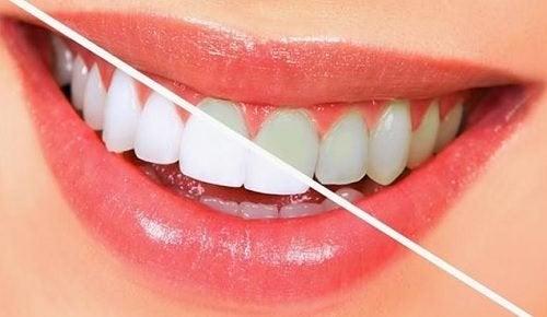 10 ruokaa, jotka valkaisevat hampaat luonnollisesti