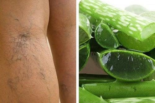 Jalkojen verenkierron parantaminen onnistuu aloe veran avulla.